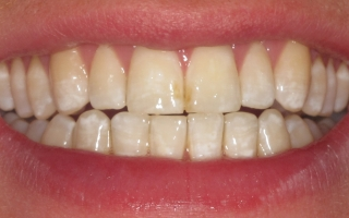 Patient after Quick Straight Teeth at Eccleshill Dental
