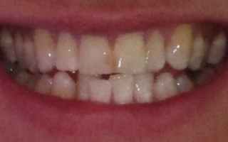 Patient before Quick Straight Teeth at Eccleshill Dental