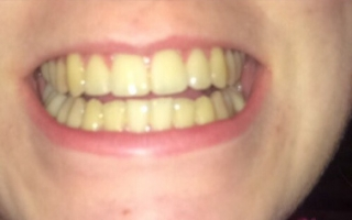 Patient before tooth whitening at Eccleshill Dental